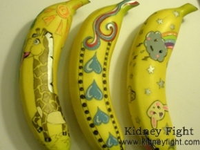 Is It Ok to Eat Banana with Kidney Disease